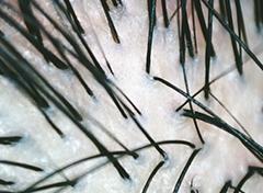 頭皮洗浄&ヒト幹細胞培養液を注入