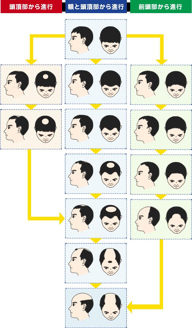 男性のAGA進行度パターン